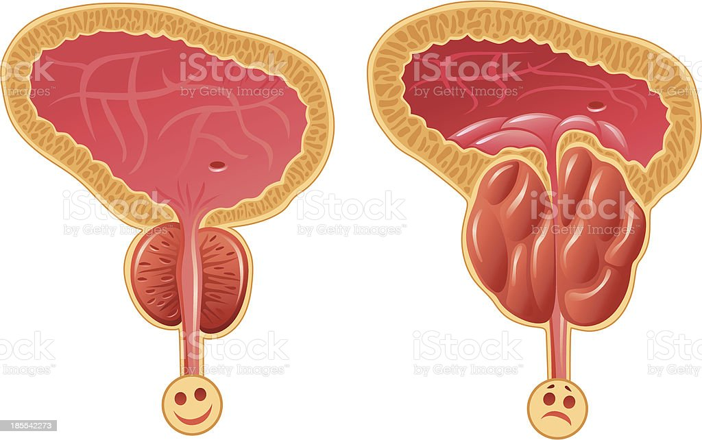 Human Prostate Gland royalty-free stock vector art