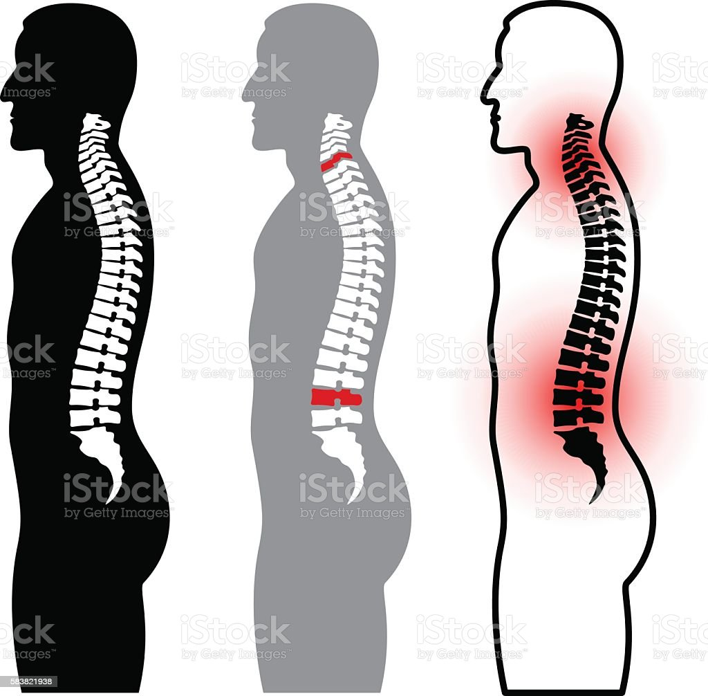 human spine silhouettes vector art illustration