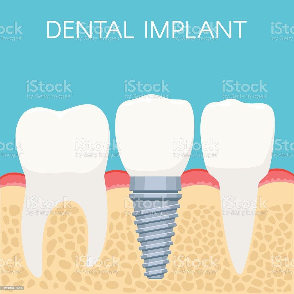 Human teeth and Dental implant vector art illustration