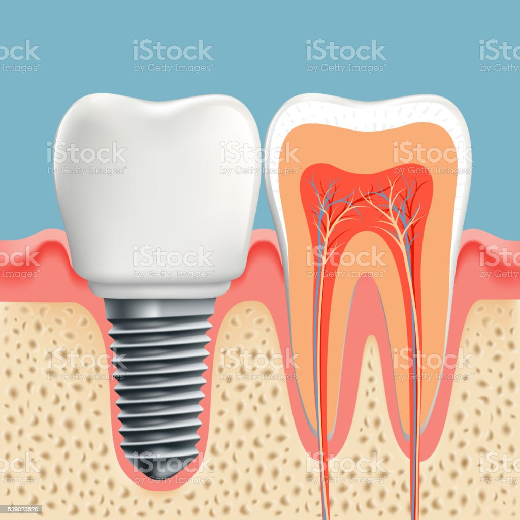 Human tooth in cross-section and dental implant. vector art illustration