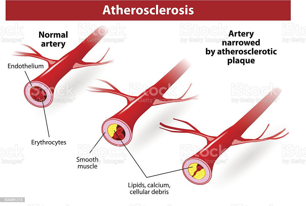 Illustrates the progression of atherosclerosis in CVD patients. royalty-free stock vector art