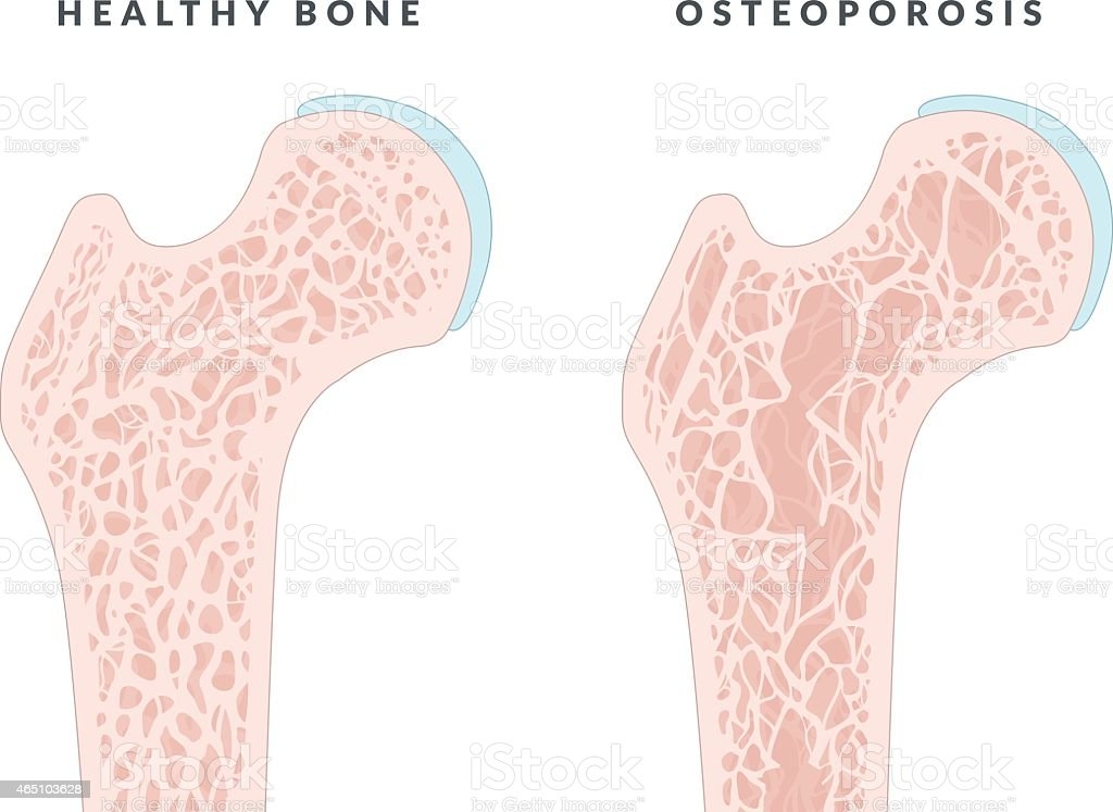 Illustration showing healthy bone and osteoporosis vector art illustration