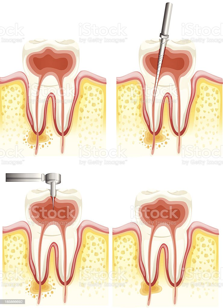 Images showing the stages of root canal treatment vector art illustration