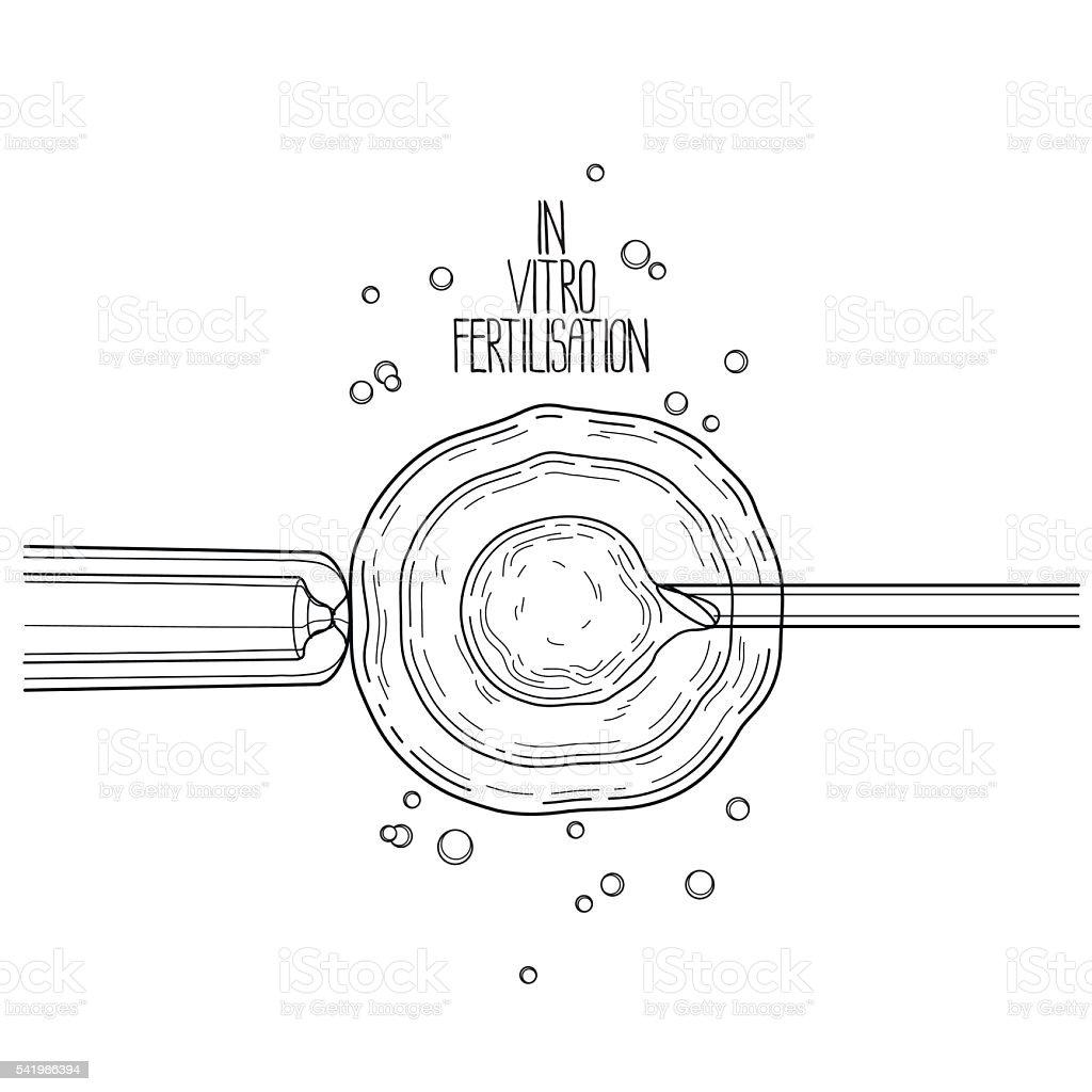 In vitor fertilisation vector art illustration