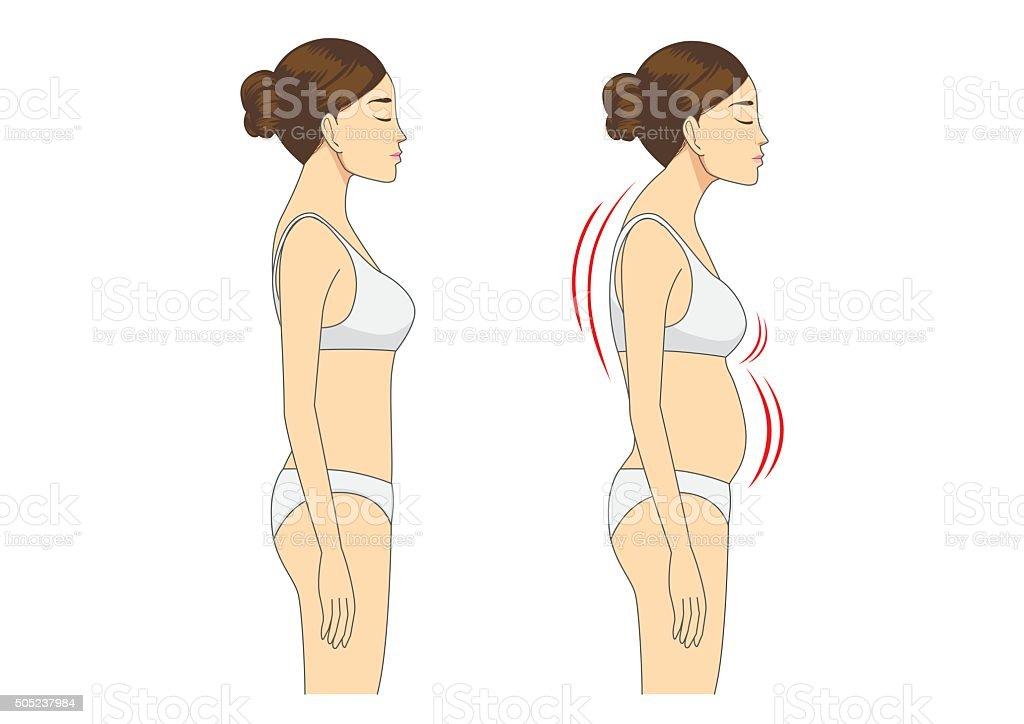 Incorrect standing posture make bad personality vector art illustration