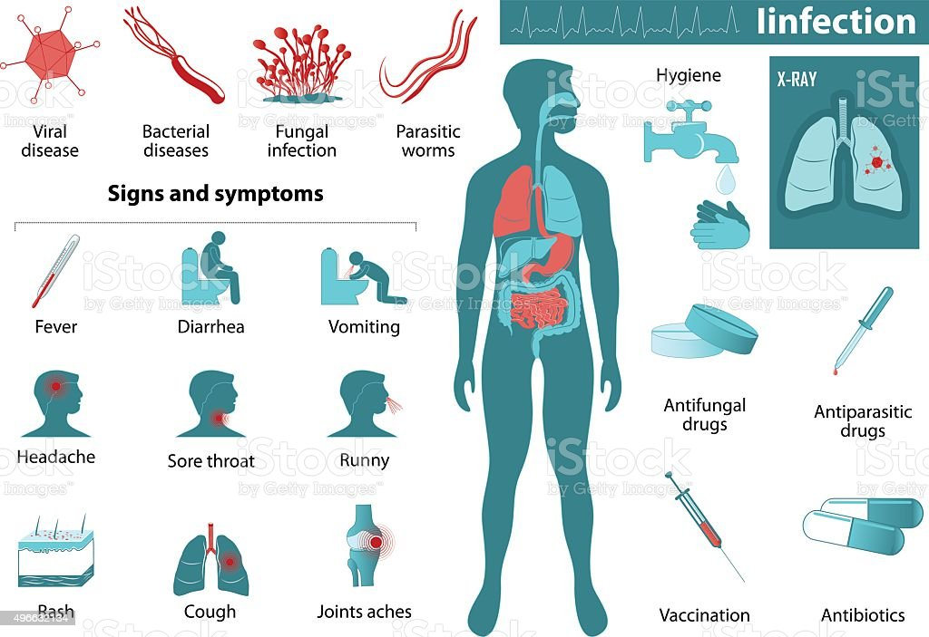 infection infographics vector art illustration