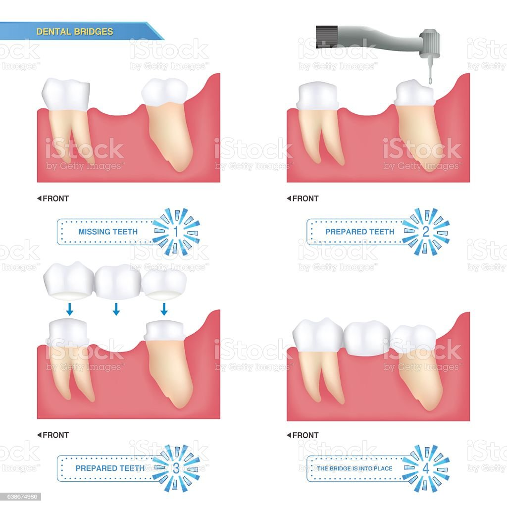 infographics dental bridge used to cover a missing tooth vector art illustration