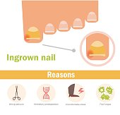 Ingrown nail. Vector.