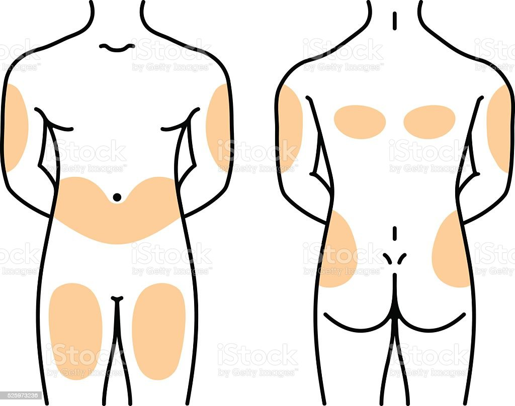 Insulin injection sites vector art illustration