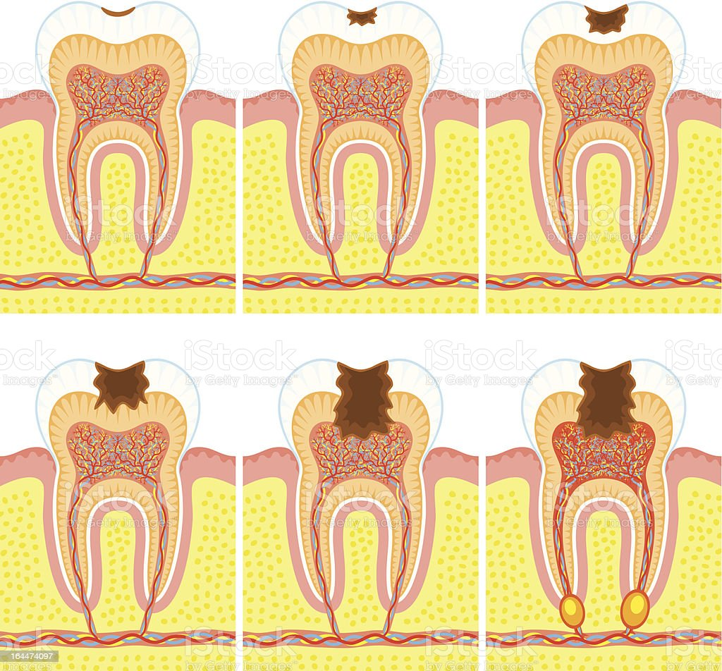 Internal structure of a tooth getting cavities royalty-free stock vector art