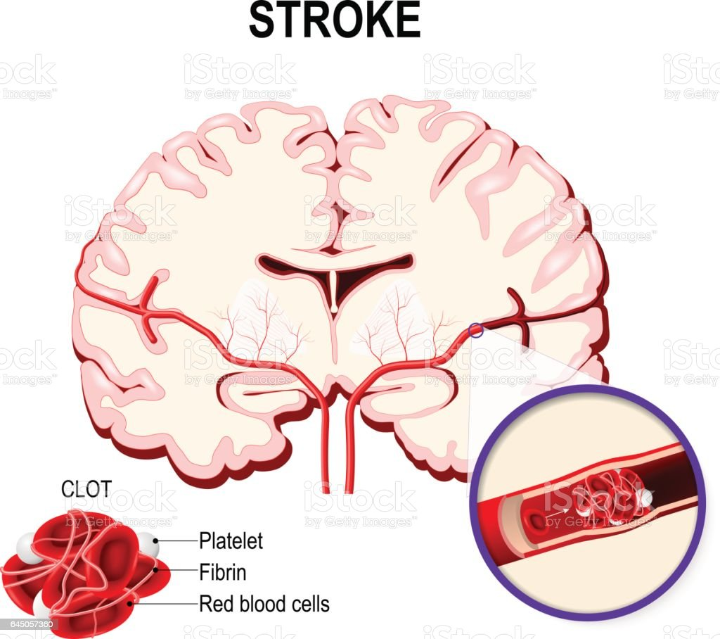 Ischemic stroke in the cerebral artery and thrombus. vector art illustration