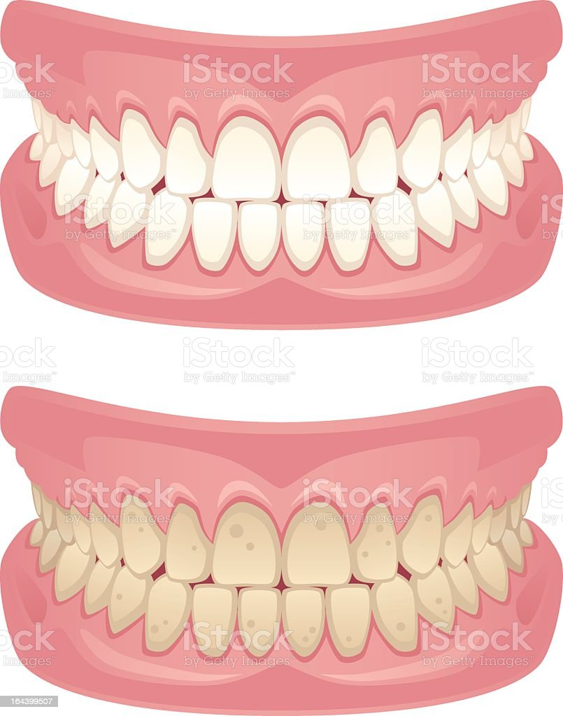 Jaws with yellow and white teeth vector art illustration
