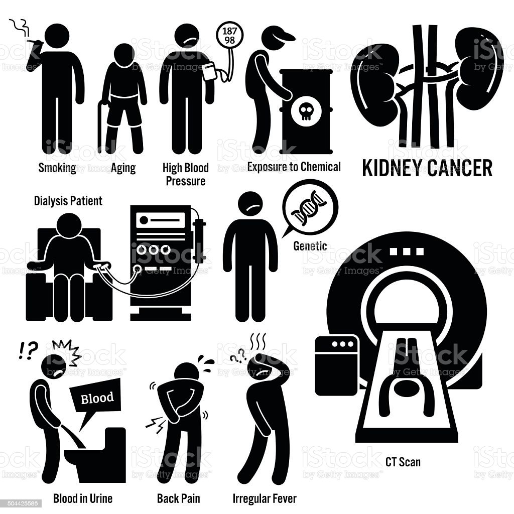 Kidney Cancer Illustrations vector art illustration