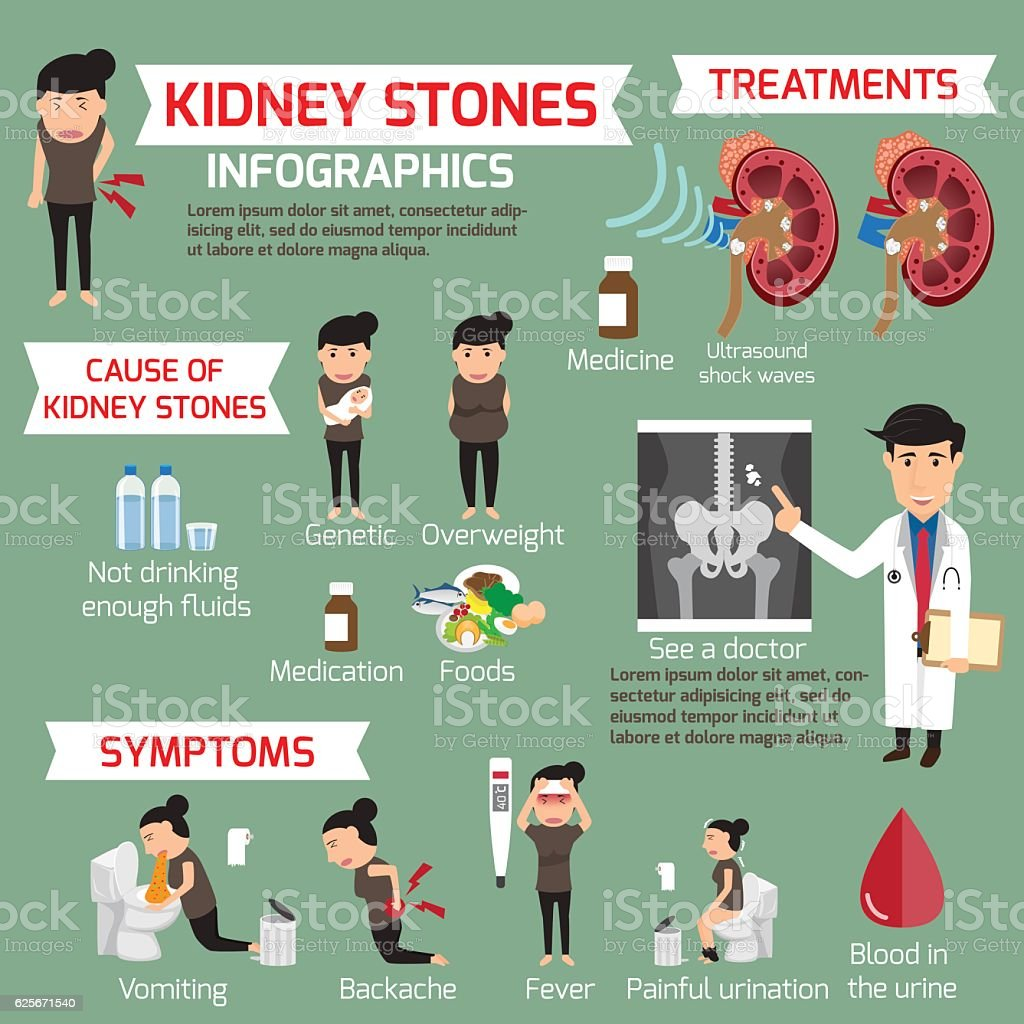 Kidney stone infographic. Detail medical set elements and sympto vector art illustration