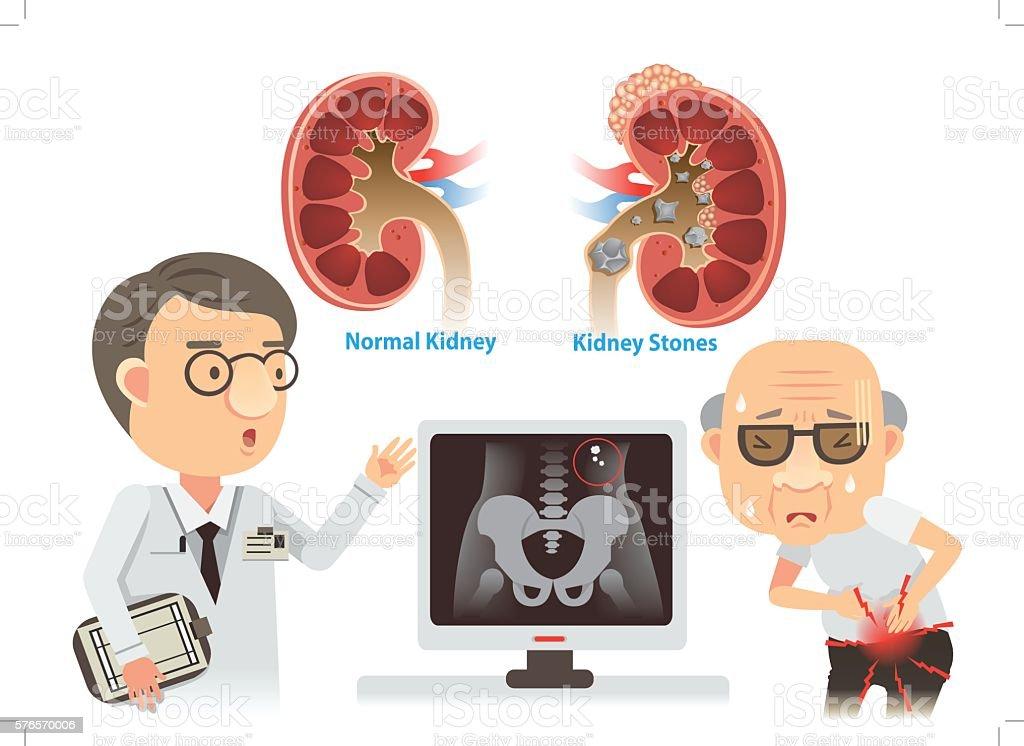 Kidney Stones vector art illustration