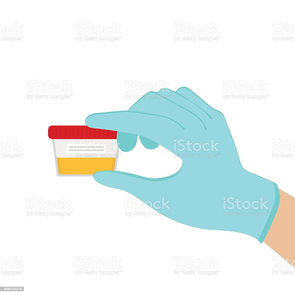 Laboratory analysis of urine. Vector illustration, vector art illustration