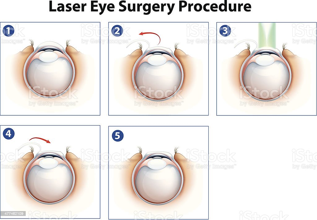 Laser Eye Surgery Procedure vector art illustration