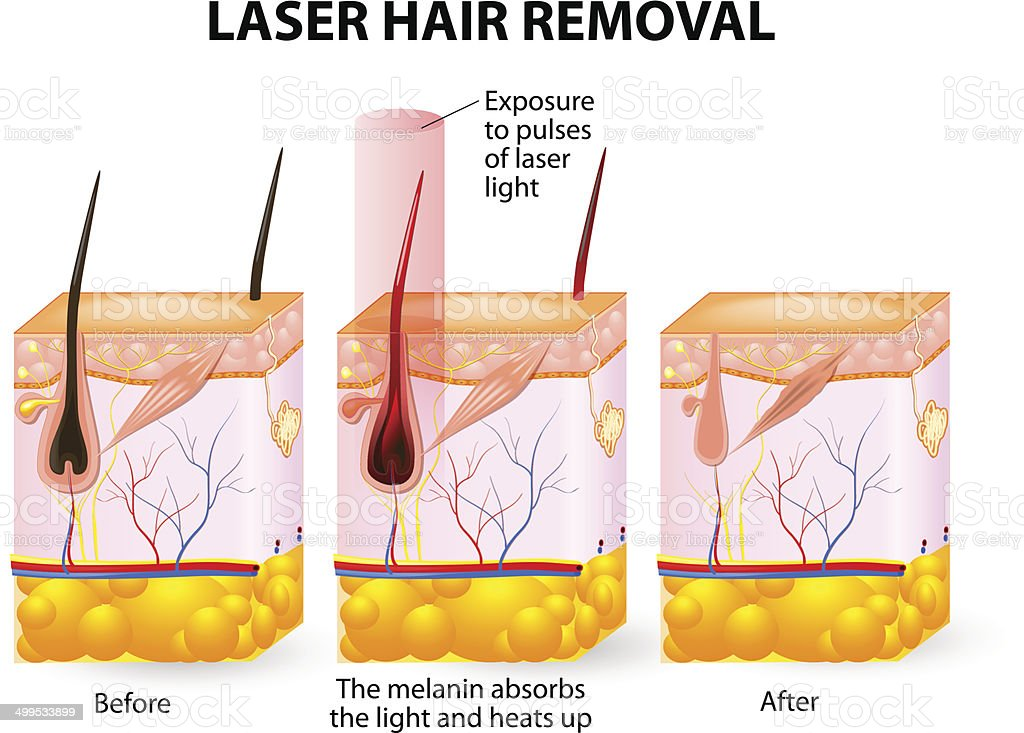 Laser hair removal. Vector diagram vector art illustration
