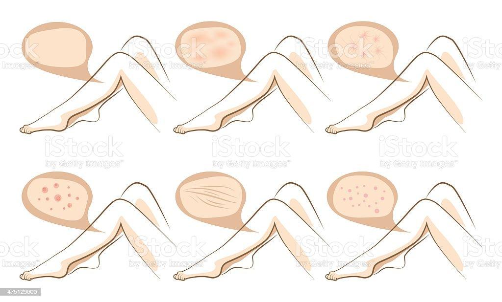 Legs concept of anti aging procedures on skin vector art illustration