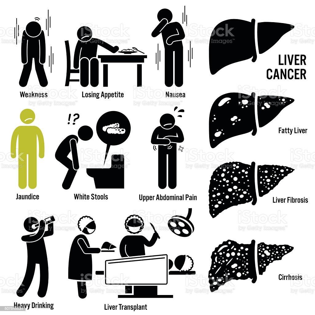 Liver Cancer Symptoms Transplant Illustrations vector art illustration