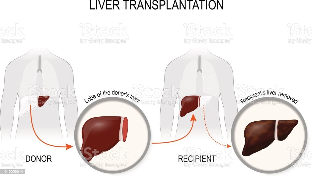 Liver transplantation or hepatic transplantation vector art illustration