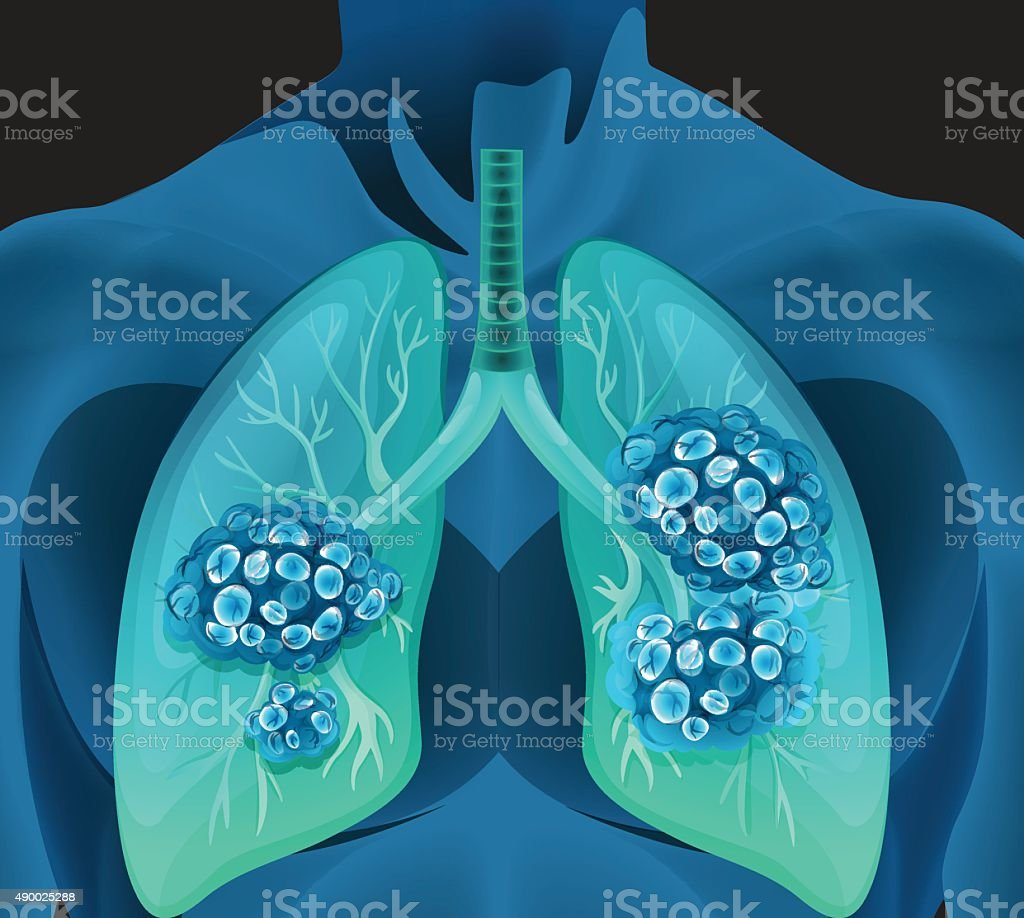 Lung cancer  human body vector art illustration