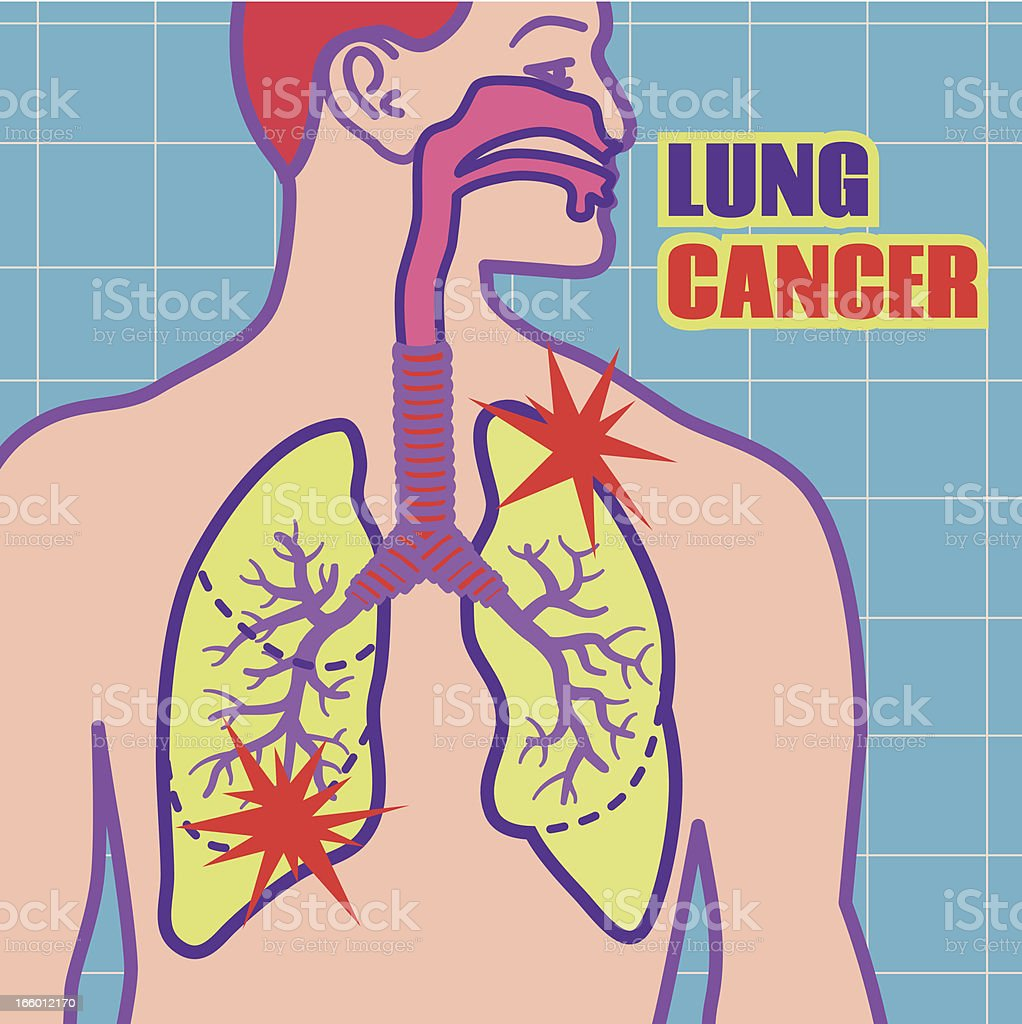 lung cancer royalty-free stock vector art