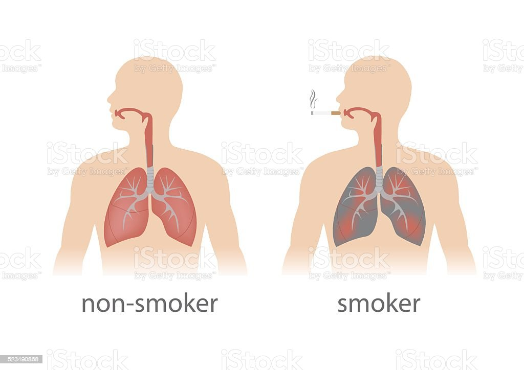 lungs comparison vector art illustration