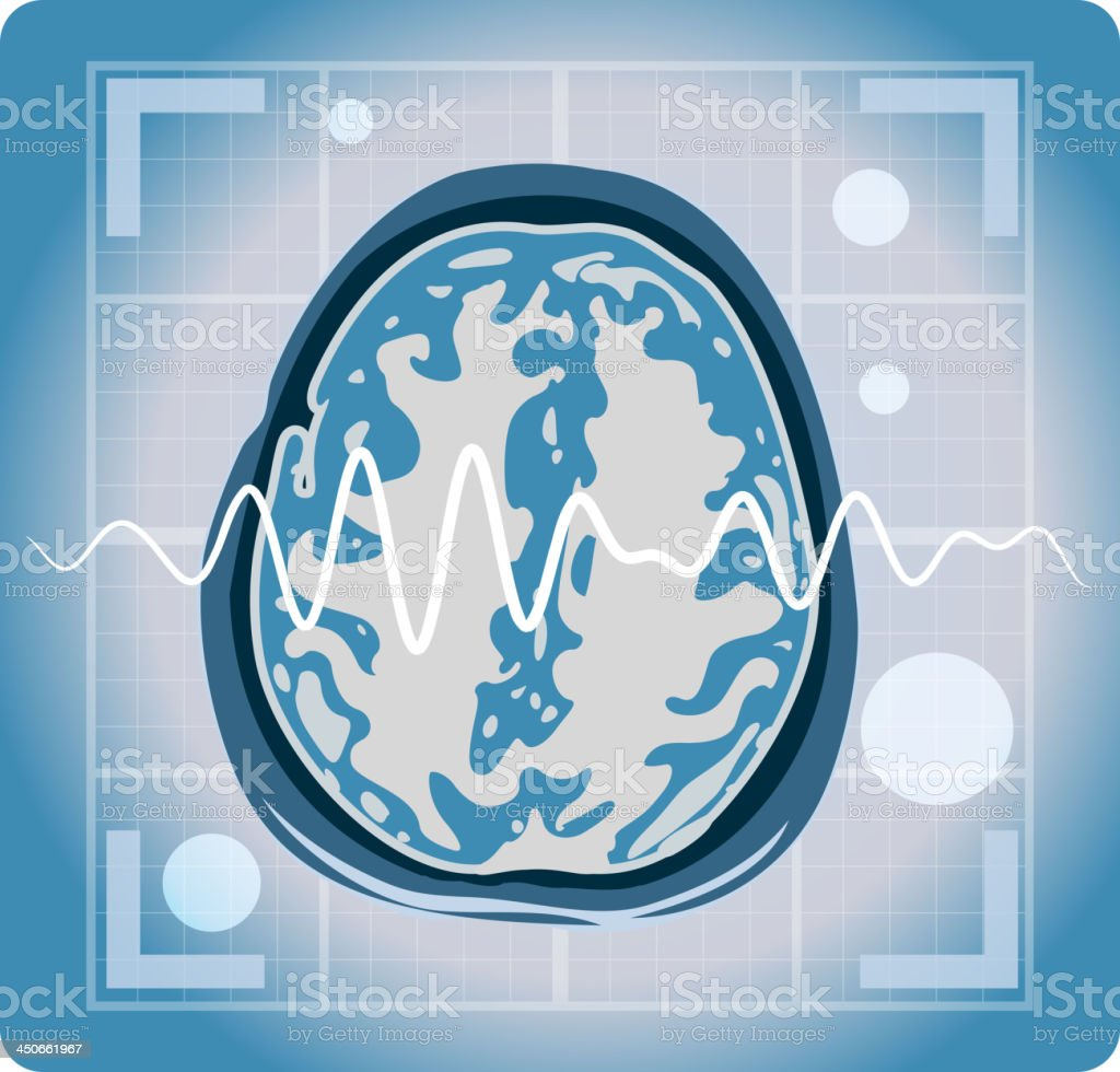 MRI magnetic resonance imaging of the brain royalty-free stock vector art