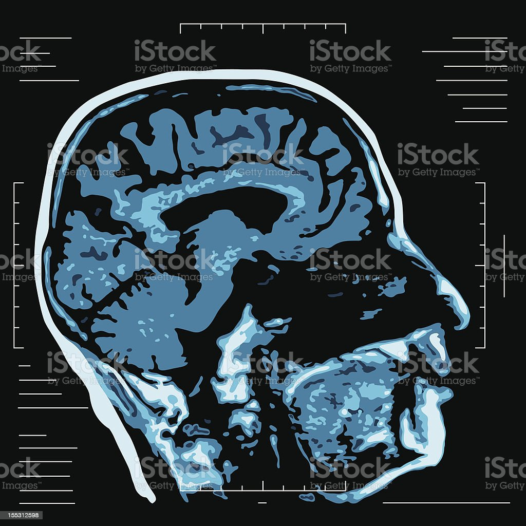 MRI - Magnetic resonance vector art illustration