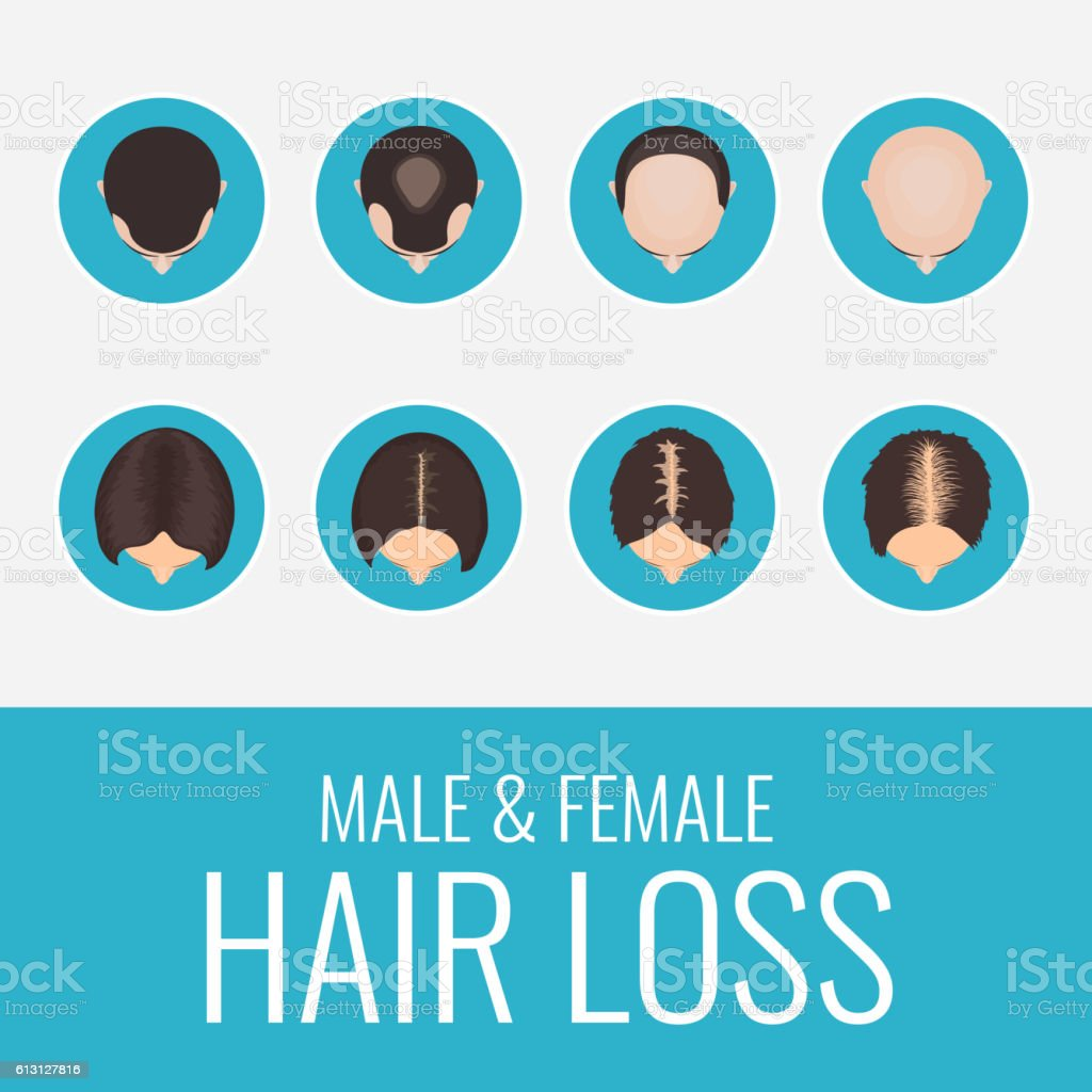 Male and female hair loss set vector art illustration