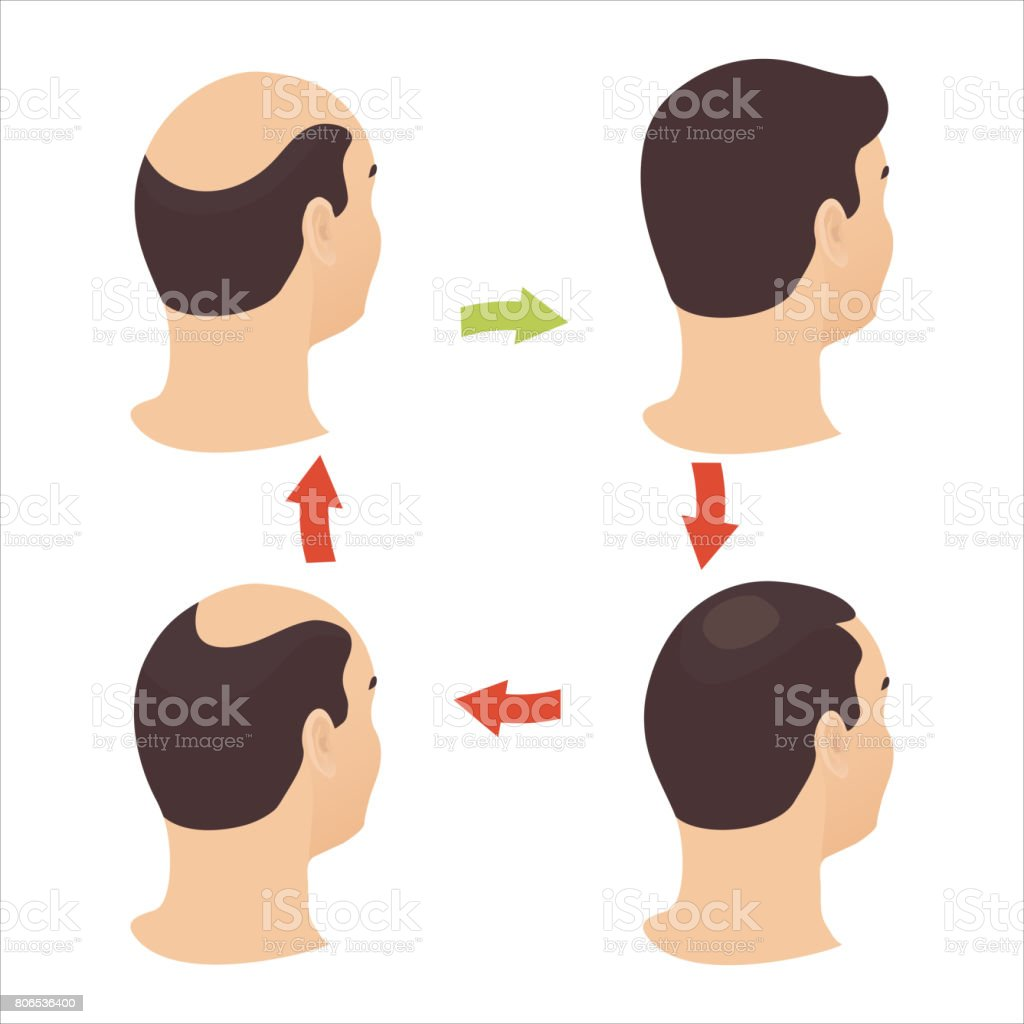 Male hair loss stages set vector art illustration