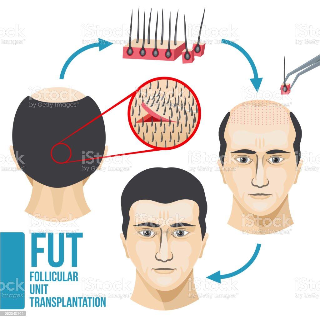 Male hair loss treatment medical vector infographic vector art illustration