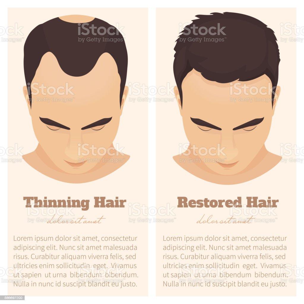 Male pattern baldness design template vector art illustration