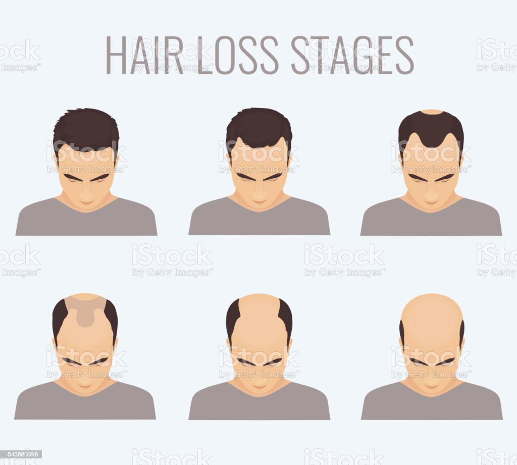 Male pattern baldness stages vector art illustration