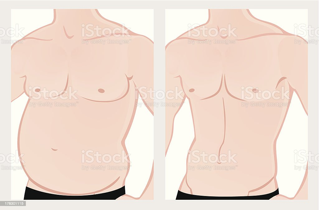 Male torso before and after treatment royalty-free stock vector art