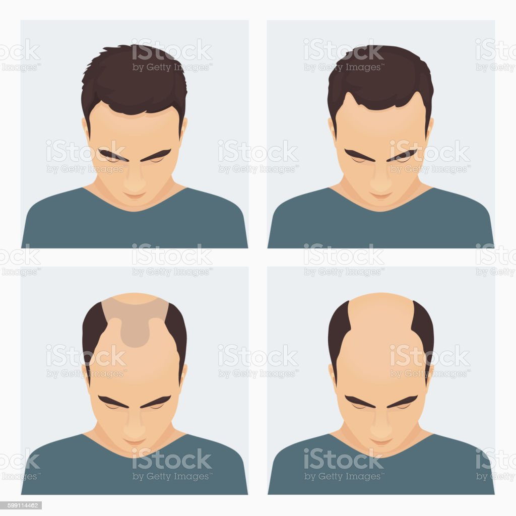 Man hair loss stages vector art illustration