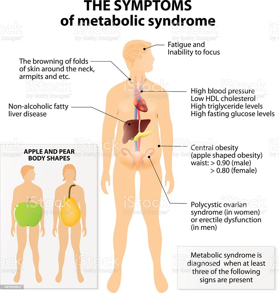 Metabolic syndrome vector art illustration
