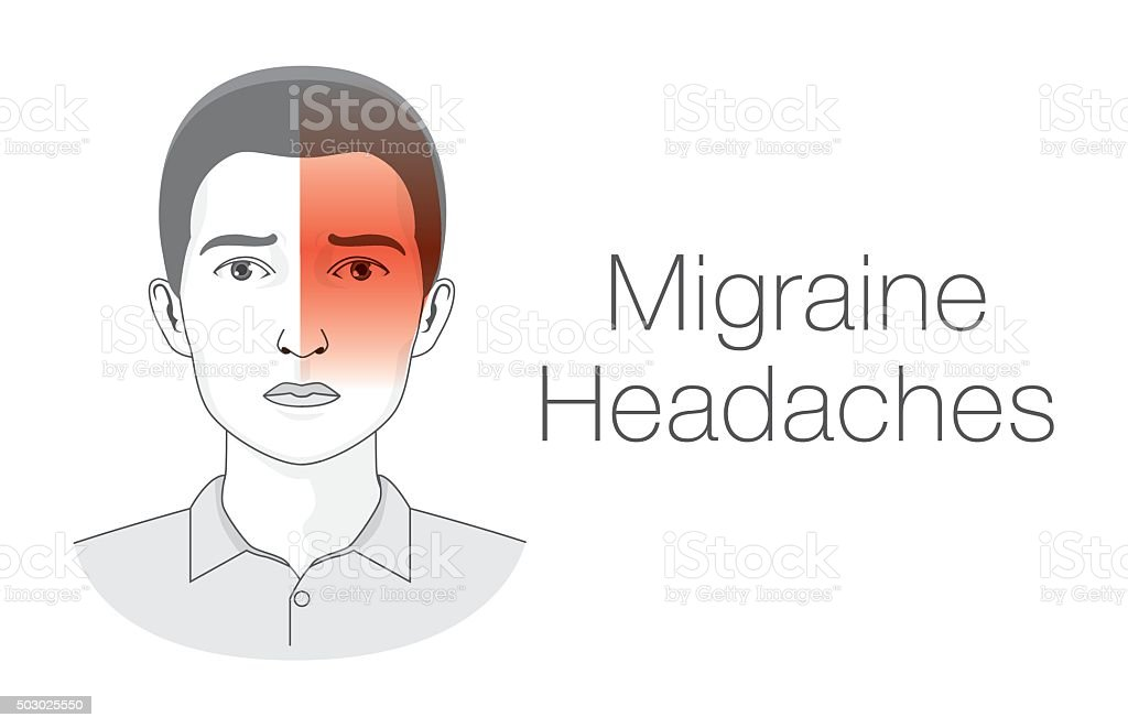 Migraine symptoms. vector art illustration