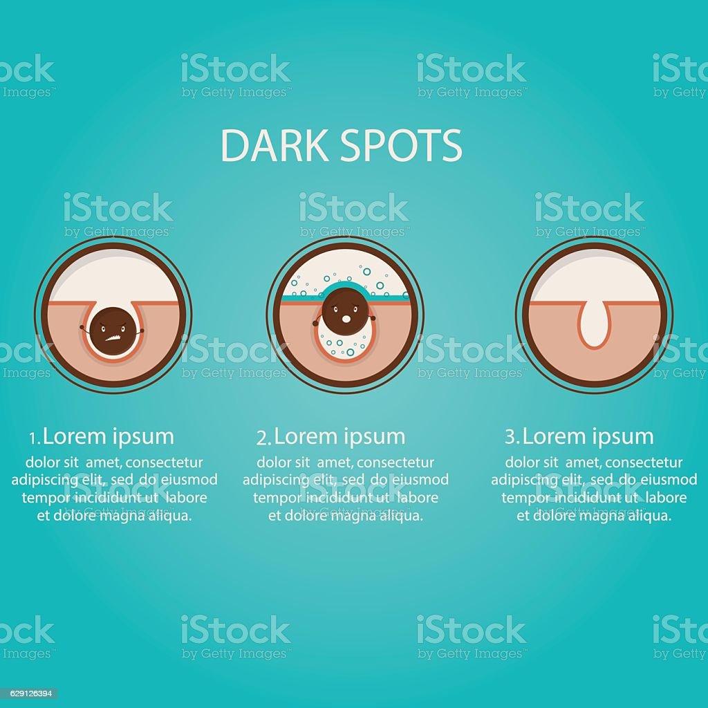 Modern vector illustration of skin problems. Dark dots, acne. vector art illustration