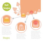 Nail fungus infection.