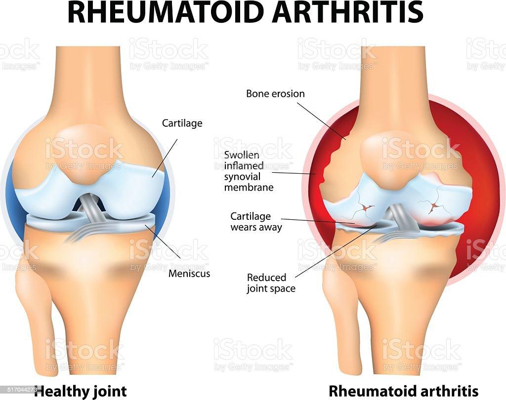 Normal Joint and Rheumatoid Arthritis vector art illustration