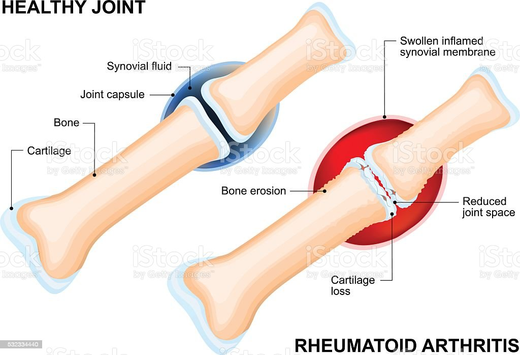 Normal Joint and Rheumatoid Arthritis vector art illustration
