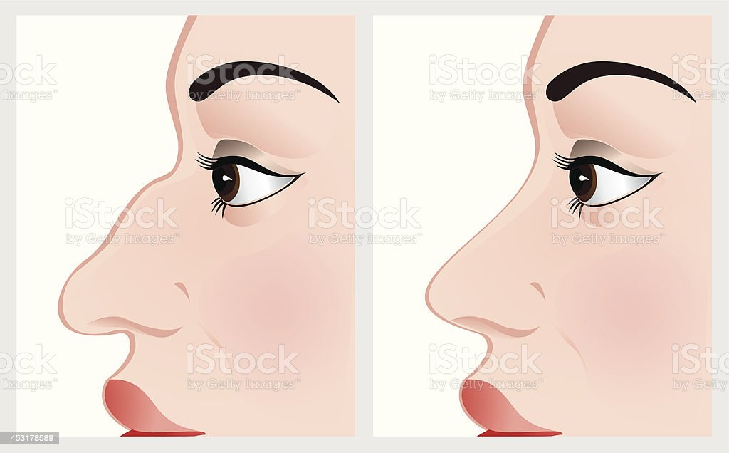 Nose reshaping. royalty-free stock vector art