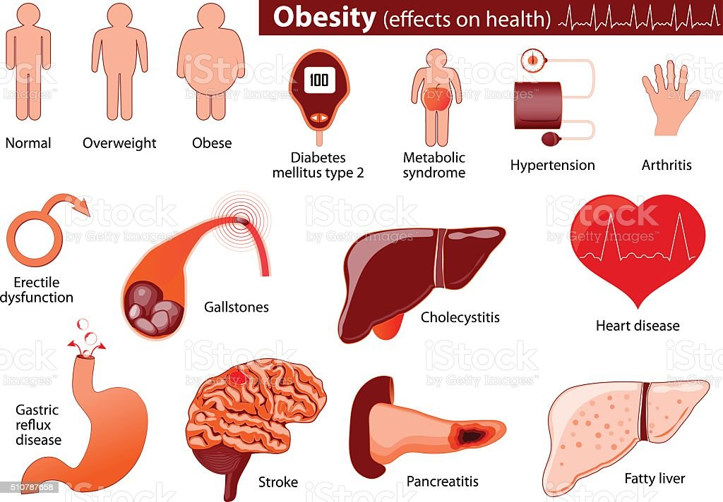 Obesity and overweight infographic vector art illustration