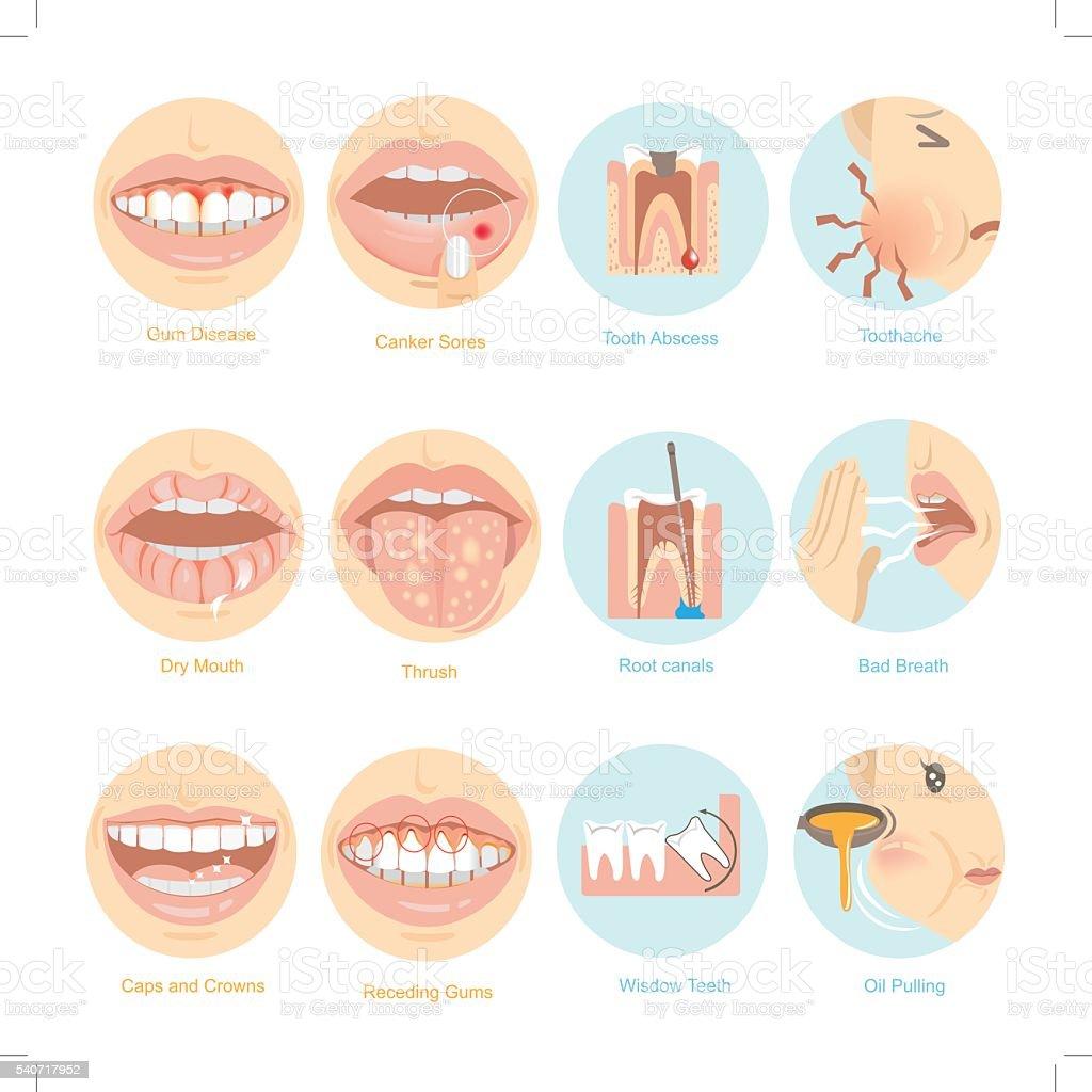 Oral problems vector art illustration