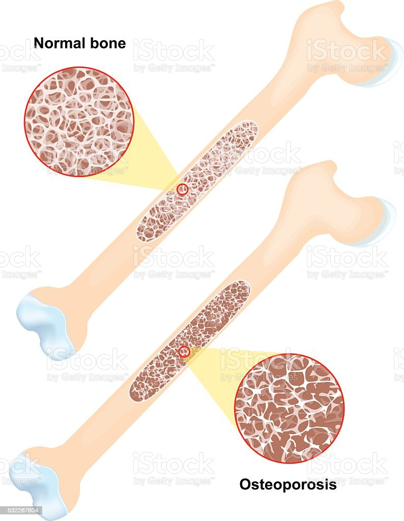 Osteoporosis. disease of bones vector art illustration