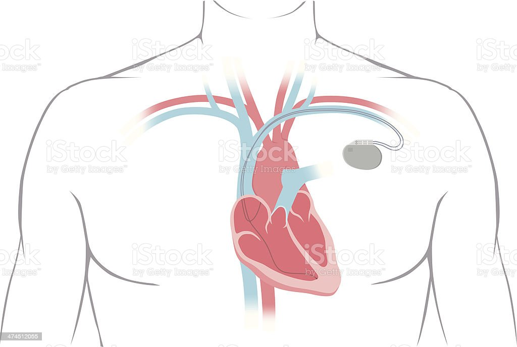 Pacemaker Diagram vector art illustration