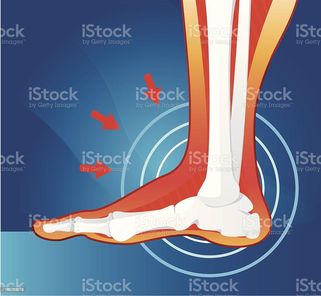 Pain in joint vector art illustration