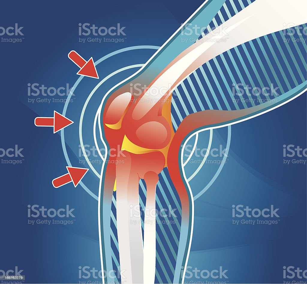 Pain in joint vector art illustration